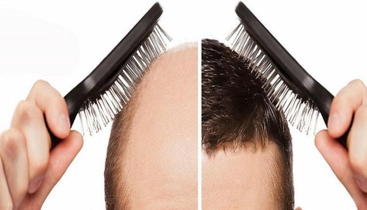 سن مناسب برای کاشت مو در آقایان و بانوان چه سنی است؟