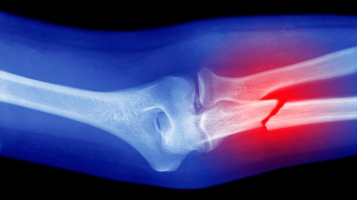 ساخت ایمپلنت حاوی نانوپوشش برای رفع نقص استخوان آسیب دیده